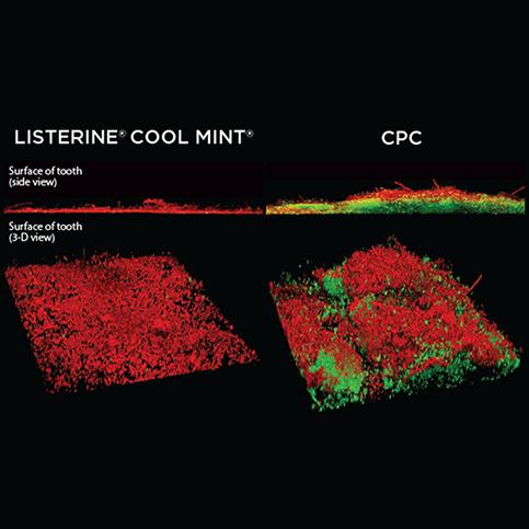 LISTERINE® Antiseptic vs CPC