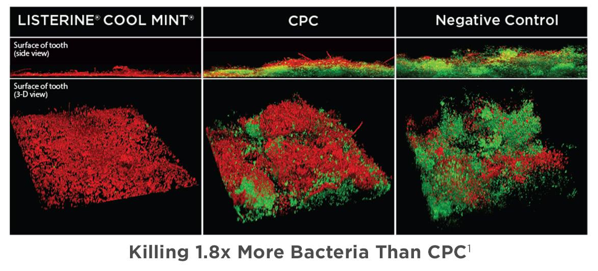 LISTERINE® Antiseptic vs CPC vs Negative Control